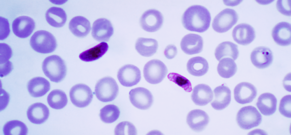 Plasmodium_falciparum1.png